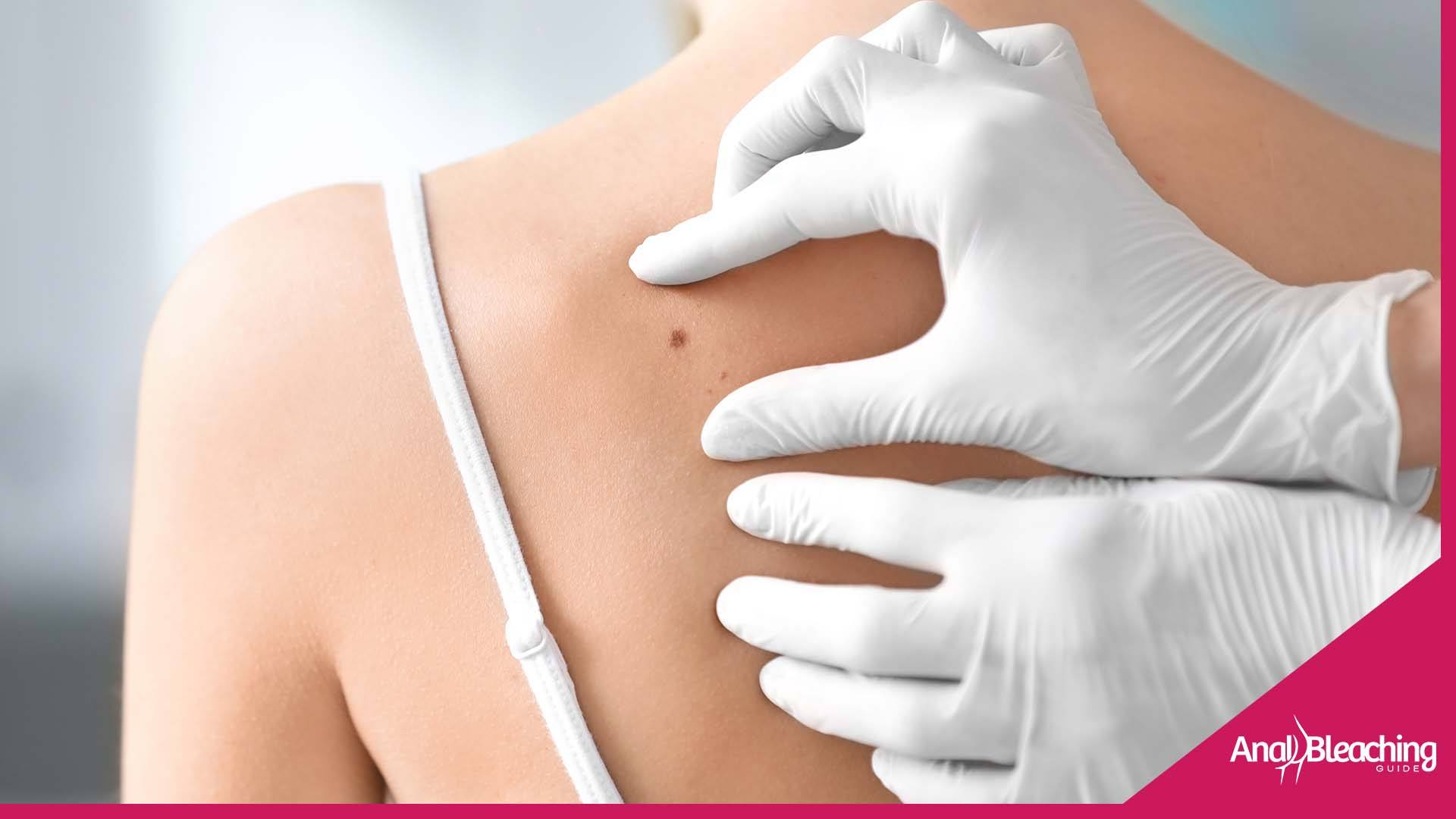 Prevention of Skin disease